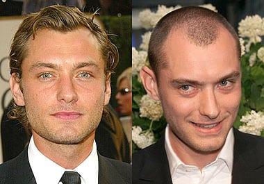 Присаждане на коса мъже