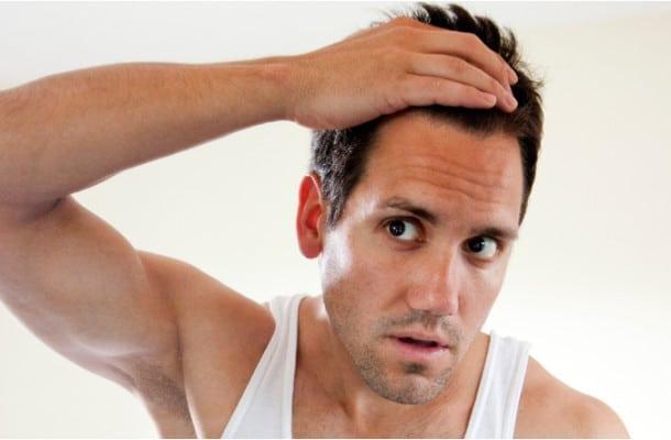 main-hair-loss