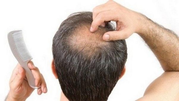 Присаждане на коса за възстановяване линията на косата ?