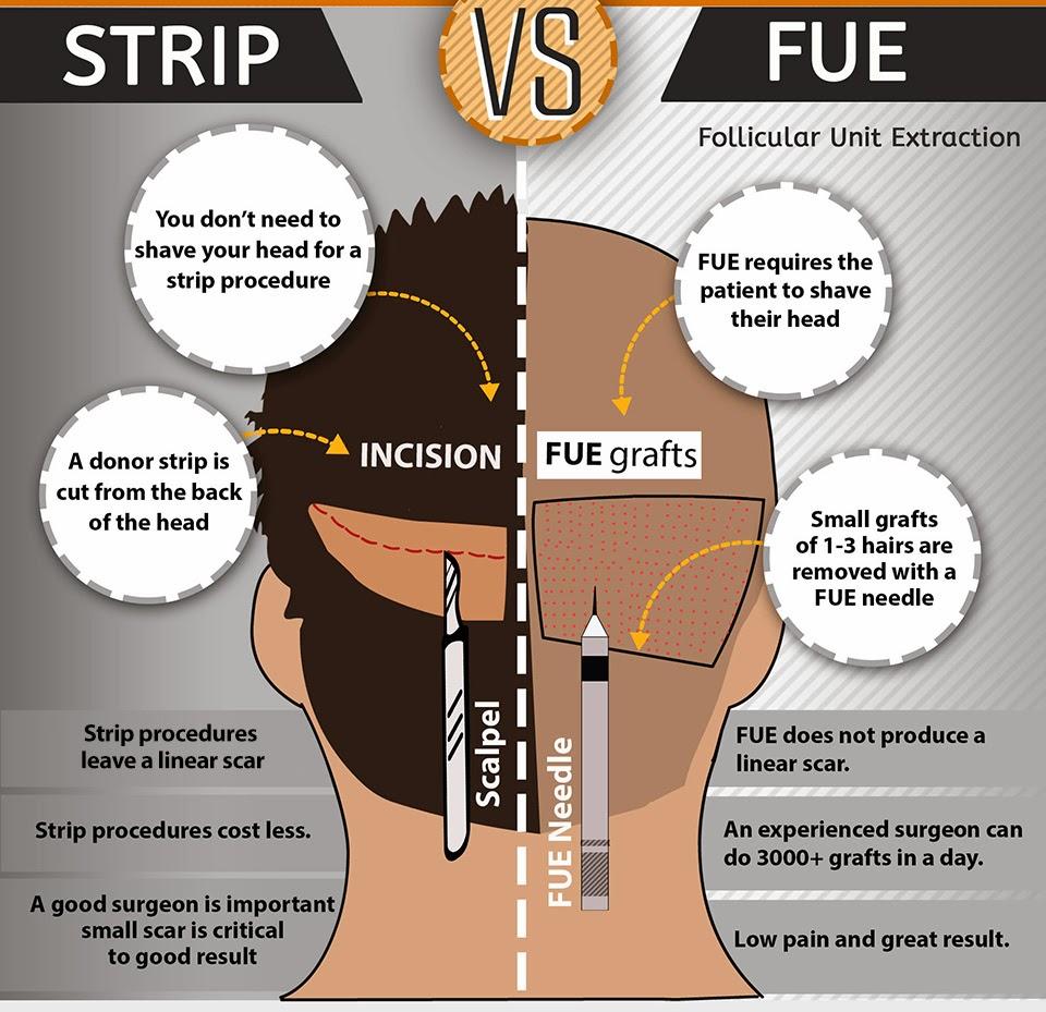 Рискове при присаждане на коса
